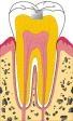 tand met gaatje